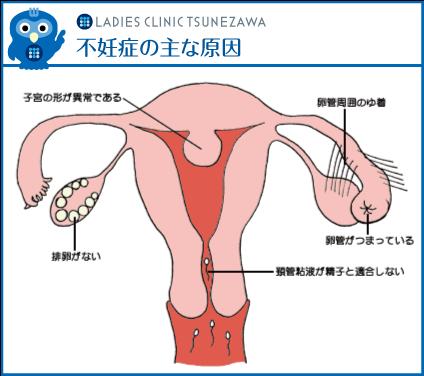 不妊症の主な原因,レディースクリニックつねざわ【福井市・福井駅東】産婦人科