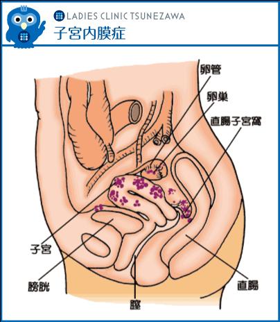 子宮内膜症,レディースクリニックつねざわ【福井市・福井駅東】産婦人科