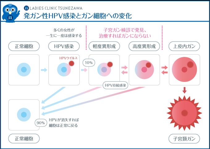 発ガン性HPV感染とガン細胞への変化,レディースクリニックつねざわ【福井市・福井駅東】産婦人科