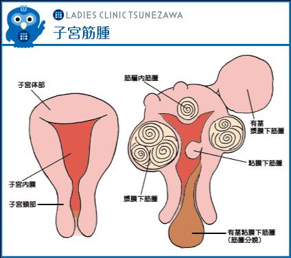 子宮筋腫,レディースクリニックつねざわ【福井市・福井駅東】産婦人科